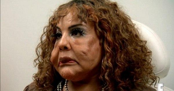 Transexual tem rosto deformado após injetar cimento e implora ...