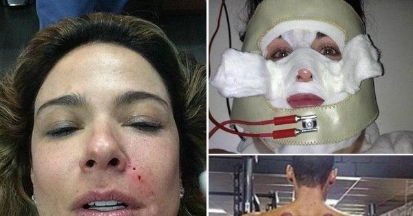Famosos assustam fãs com tratamentos estéticos bizarros - Fotos ...
