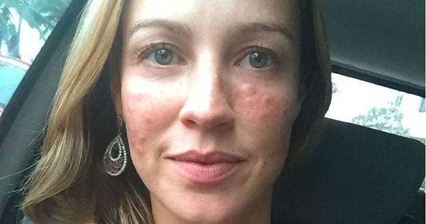 Luana Piovani chama a atenção com rosto inchado nas redes ...