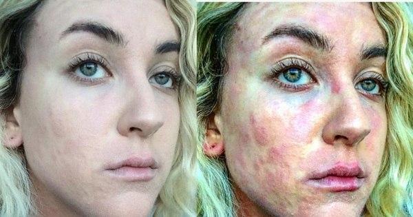 """Atriz revela drama de viver com doença de pele: """"É insuportável ..."""