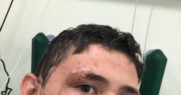 """Garoto de 17 anos é atacado por ácido e pode ficar cego: """"Ele anda ..."""