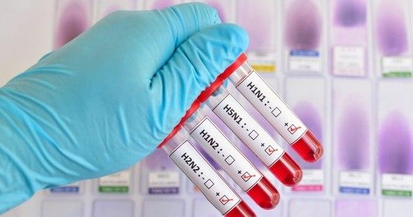 Número de mortes por H1N1 no País chega a 588 - Notícias - R7 ...