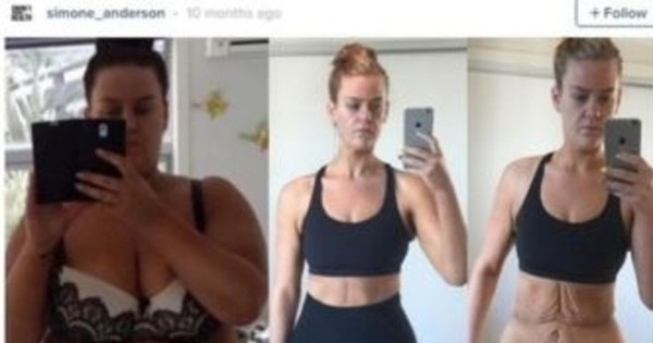 Jovem de 25 anos documenta no Instagram perda de 88 kg e ...
