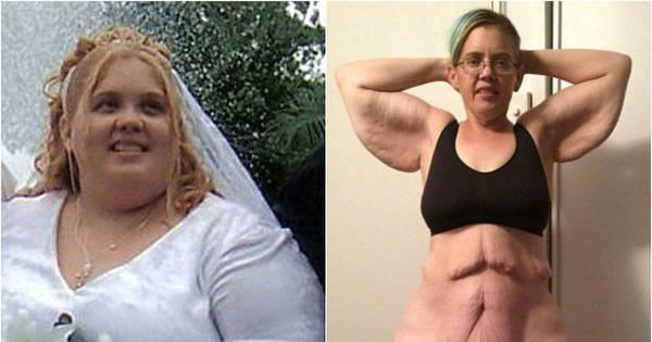 Mulher perde mais de 100 kg, mas sofre com excesso de pele ...