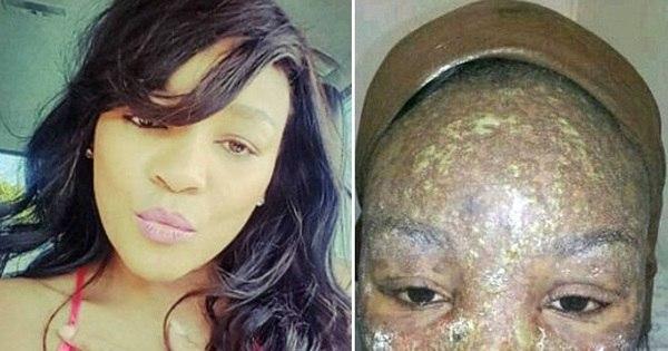 """Mulher quase morre após sofrer reação alérgica: """"Antidepressivos ..."""