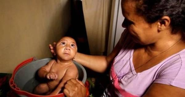 A batalha de bebês com microcefalia para chegar ao primeiro ano ...