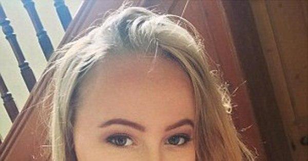 Jovem de 18 anos morre por câncer de pele: 'Se ela tivesse usado ...