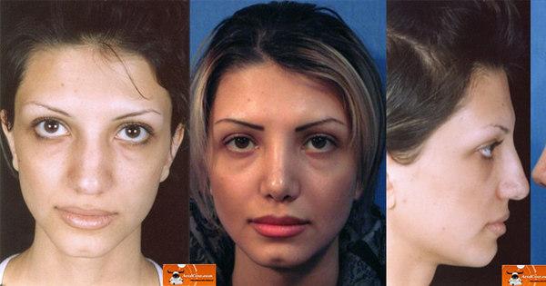 Veja fotos de antes e depois de cirurgia plástica no nariz! - Notícias ...