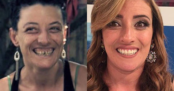 """Veja a incrível transformação da ex-usuária de crack, Marcela: """"É ..."""