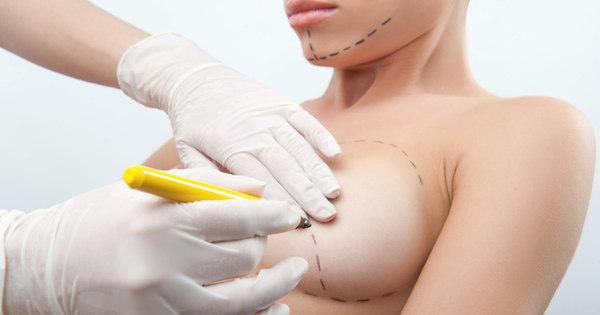 Fumantes devem evitar cirurgia de implante mamário. Saiba o que ...