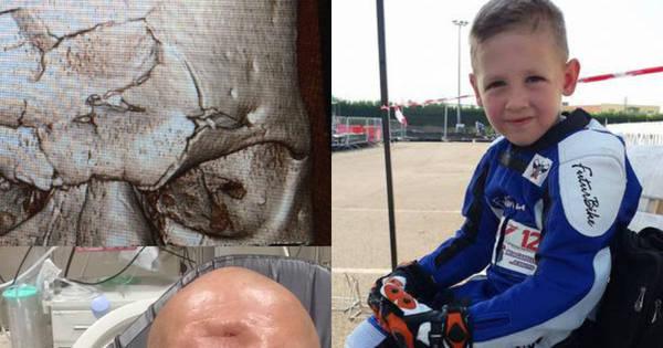 Pior lesão da história do MMA e tragédia com menino de seis anos ...