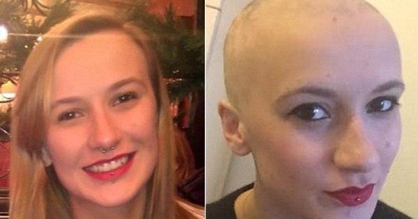 Jovem perde os cabelos por estresse em apenas 2 meses ...