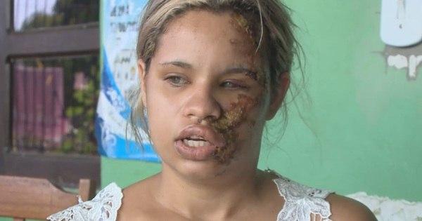 Homem deixa ex- namorada deformada após discussão no Amapá ...