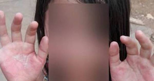 Mãe acusa filha de roubo e queima mãos da criança como punição ...