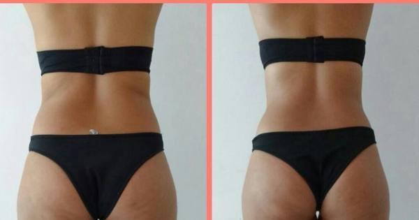 É ver para crer: novos tratamentos estéticos garantem resultados na ...
