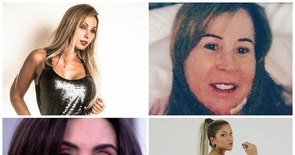 10 famosos que enfrentaram problemas após tratamentos estéticos