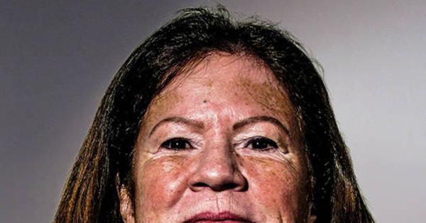 Mulher com vitiligo faz peeling de fenol e manchas desaparecem ...
