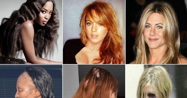 Celebridades perdem cabelos após aplicar produto químico em ...