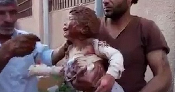 Vídeo chocante mostra criança síria se contorcendo de agonia após ...