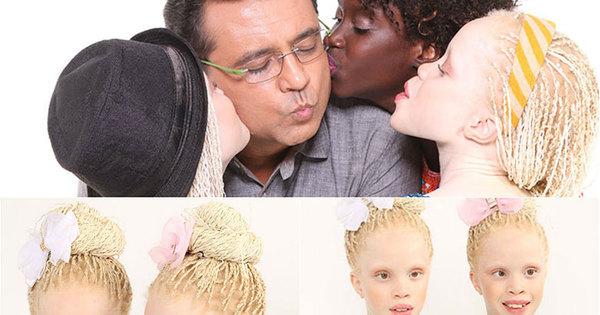 Veja o ensaio completo das gêmeas albinas que querem ser modelos