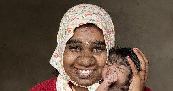 """Chamado de """"bebê lobisomem"""", recém-nascido tem pelos pretos e ..."""