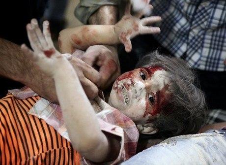 Imagens de crianças feridas se tornam símbolo da guerra na Síria