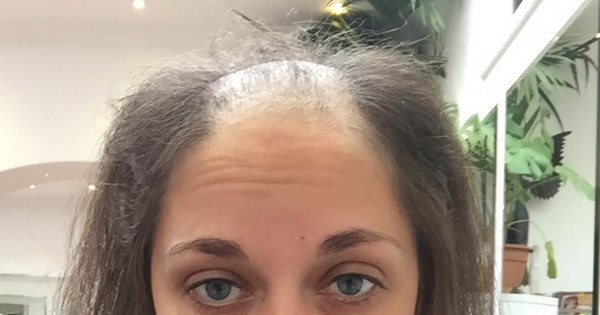 """Doença fez mulher arrancar próprio cabelo até ficar careca: """"Minha ..."""