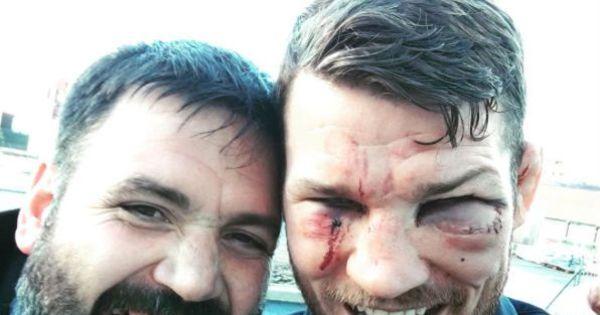 Campeão no UFC 204 posta foto com olho inchado, mas feliz ...