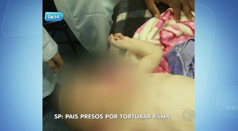 Um casal foi preso em Santo André, no ABC Paulista, acusado de torturar a própria filha de apenas quatro meses