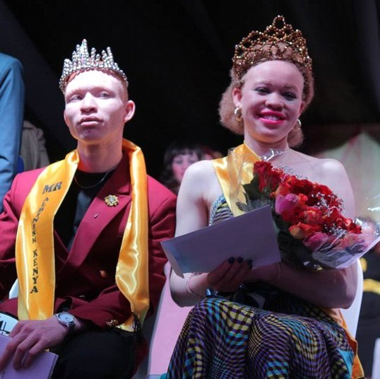 Resultado de imagem para Mutilados, esquartejados e perseguidos em seus países, albinos africanos mostram sua beleza em concurso