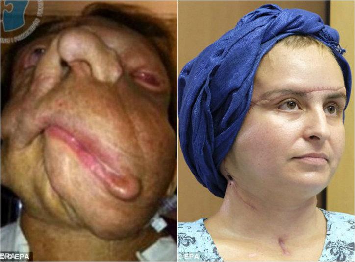 Uma mulher polonesa que teve o rosto desfigurado por um tumor facial enorme revelou sua nova aparência após um transplante de rosto. Joanna passou por um transplante facial após ter uma a neurofibromatose — uma condição genética que causa tumores benignos. No caso da jovem, a doença a deixou incapaz de mastigar, falar ou engolir. As informações são do portal de notícias britânico DailyMail