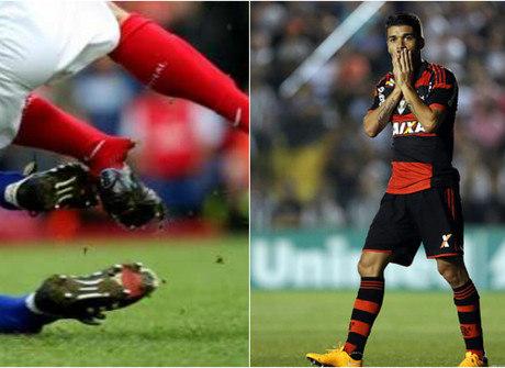 Veja 20 piores lesões de jogadores de futebol ao redor do planeta
