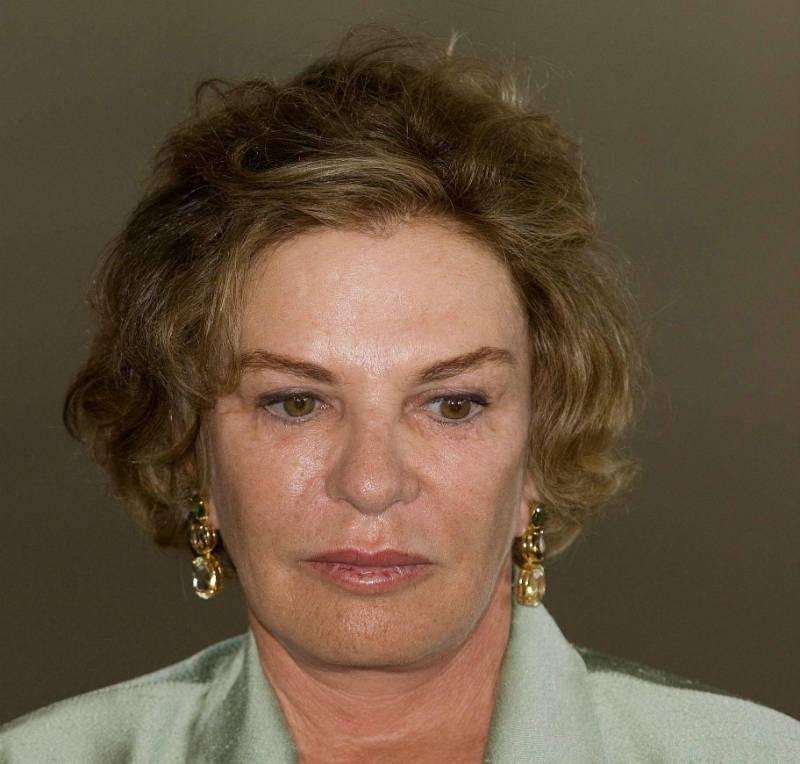 Vaza resultado de tomografia de Marisa Letícia, esposa de Lula