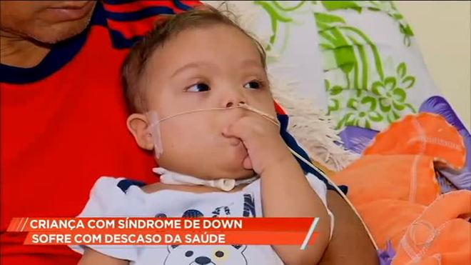 Bebê de 11 meses com síndrome de Down precisa de ajuda