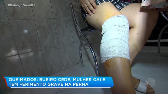 Bueiro cede em Queimados, mulher cai e precisa levar 50 pontos na perna