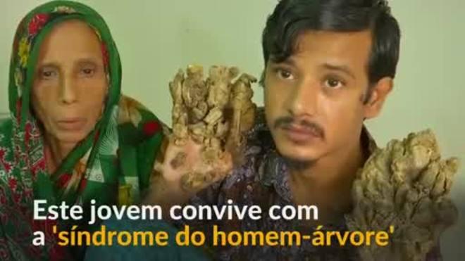 Bangladesh: Jovem com 'síndrome do homem-árvore' pede amputação
