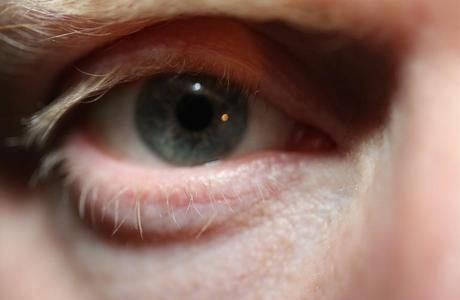 Associações ligadas ao tratamento de esquizofrenia no Brasil dizem que a doença atinge 0,7% da população, ou seja, 1,2 milhão de pessoas