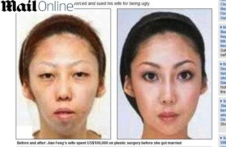 A mulher de Jian Feng sofreu essa transformação depois das plásticas