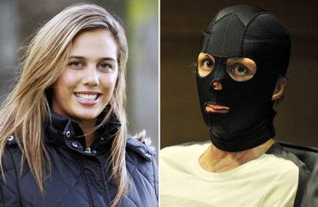 A ex-modelo australiana Turia Pitt se queimou durante uma prova de corrida