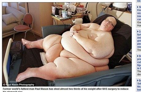 Mason afirma que sua compulsão alimentar começou aos de 20 anos