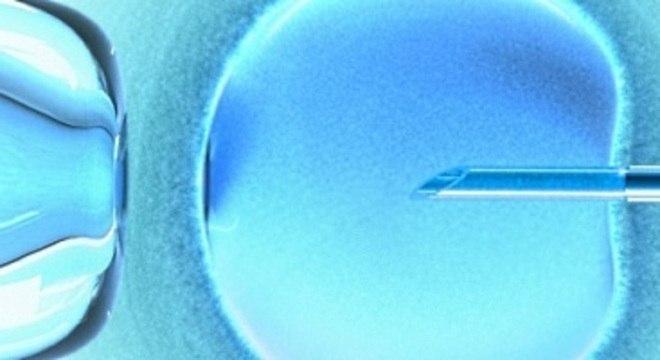 Congelamento de óvulos é uma opção para mulheres que estão perto dos 35 anos