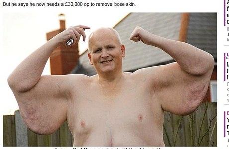 Além de ir à academia, Mason precisa tirar 50 kg de pele em cirurgia
