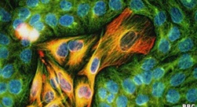 Droga pode reduzir o desenvolvimento de um tumor no curto prazo, mas ela logo se torna ineficaz