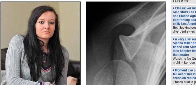 A jovem de 20 anos desloca o ombro cerca de dez vezes ao dia