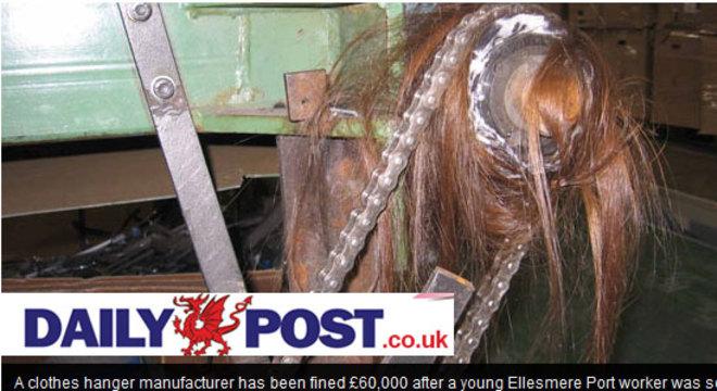 A jovem estava trabalhando na fábrica de cabides quando seu lenço ficou preso em uma das engrenagens e ela começou a ser arrastada pelos cabelos. Imagem Ilustrativa