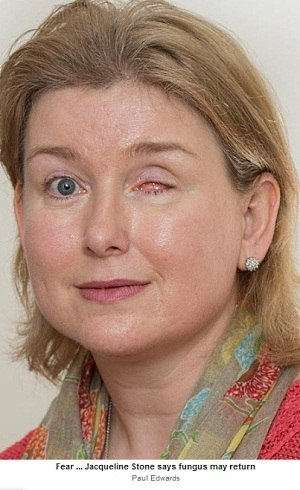 Jacqueline de Stone, de 42 anos, teme que infecção no olha possa voltar