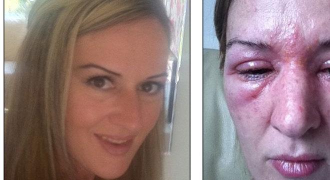 Jane Rolfe, de 42 anos, sofreu uma reação alérgica por causa de um procedimento estético para alongar os cílios