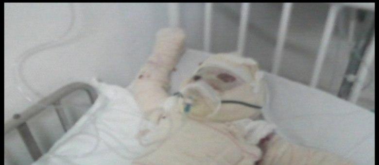 Joaquim Gabriel teve o corpo queimado depois que faísca atingiu colchão em que ele dormia