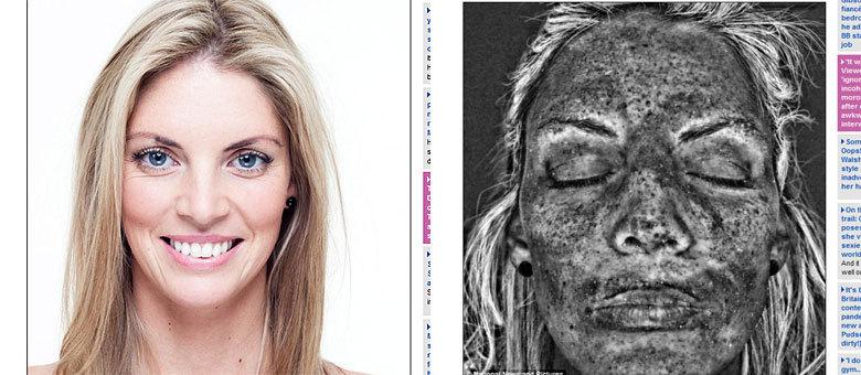Ao ver o resultado, Kelly diz que foi quem mais apresentou danos na pele