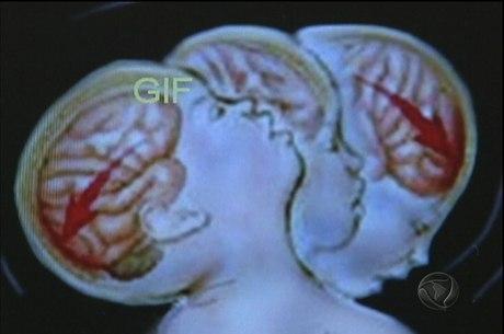 Sacudir a cabeça pode causar danos permanentes a bebês